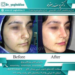 nose surgery (211)