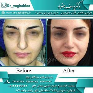 nose surgery (213)