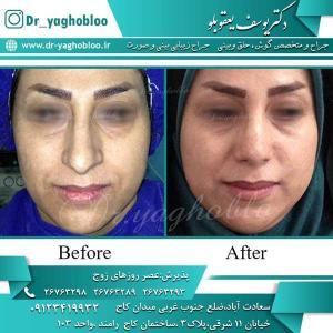 nose surgery (216)