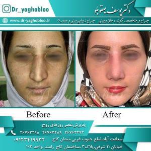 nose surgery (219)