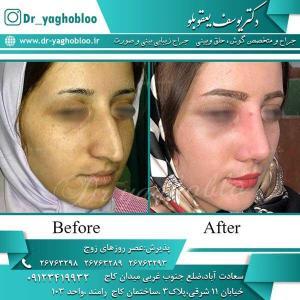 nose surgery (220)