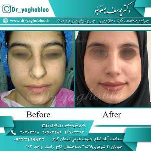 nose surgery (222)