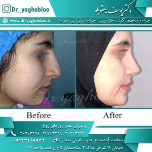 nose surgery (224)