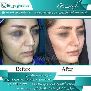 nose surgery (226)