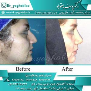 nose surgery (227)