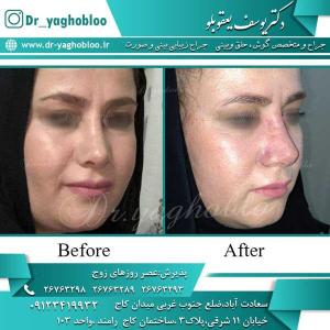 nose surgery (231)