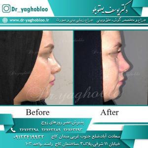 nose surgery (232)