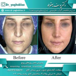 nose surgery (234)