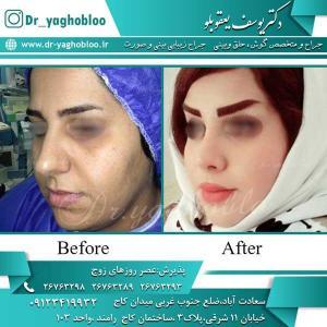 nose surgery (237)