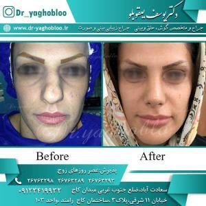 nose surgery (243)