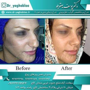 nose surgery (244)