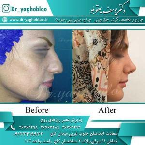 nose surgery (245)
