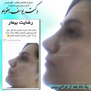 nose surgery (246)