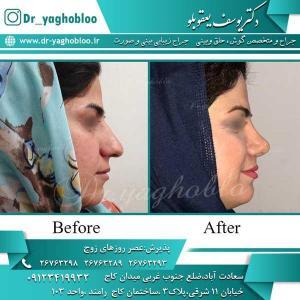 nose surgery (248)