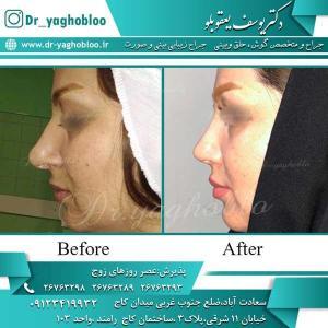 nose surgery (251)