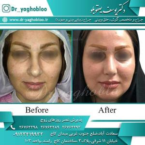 nose surgery (253)