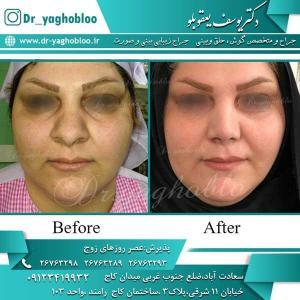 nose surgery (255)