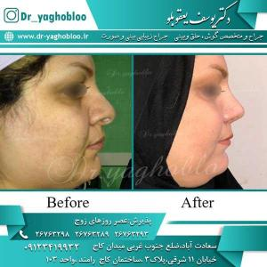 nose surgery (258)