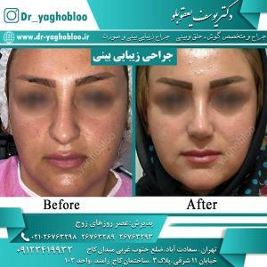 nose surgery (26)