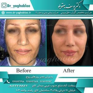nose surgery (267)