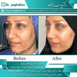 nose surgery (268)