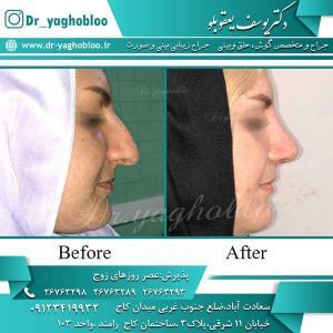 nose surgery (269)