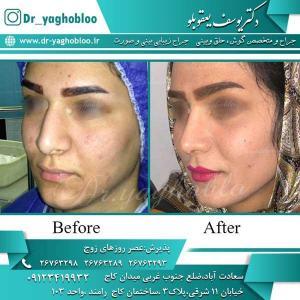 nose surgery (272)