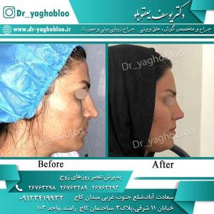nose surgery (275)