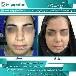 nose surgery (276)