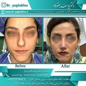 nose surgery (279)