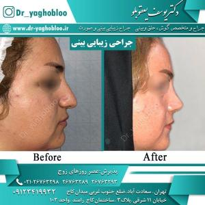 nose surgery (28) (1)