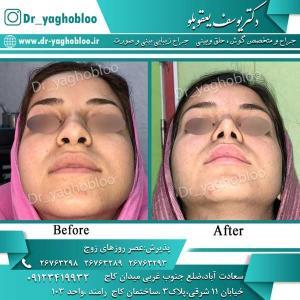 nose surgery (283)