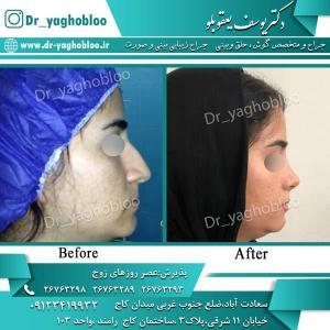 nose surgery (288)