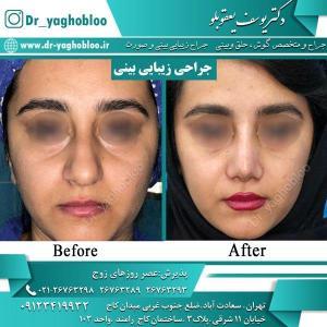 nose surgery (29)