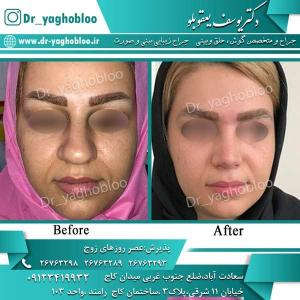 nose surgery (290)