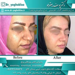 nose surgery (291) (1)