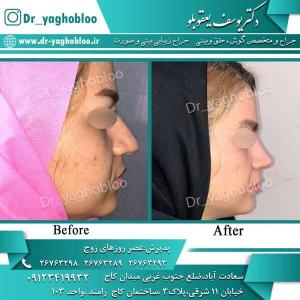 nose surgery (292)