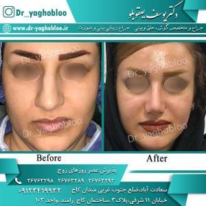 nose surgery (293)