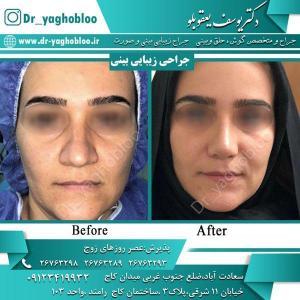 nose surgery (3)