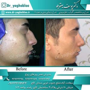 nose surgery (303)