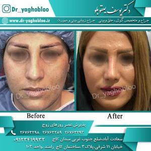 nose surgery (304)