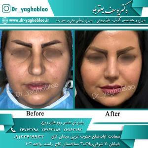 nose surgery (308)