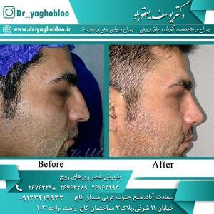 nose surgery (311)