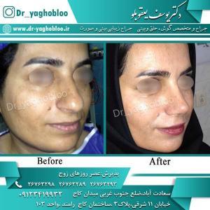 nose surgery (314)