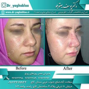 nose surgery (317)