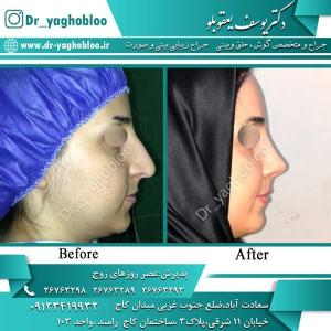 nose surgery (319)