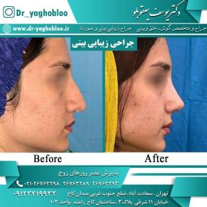 nose surgery (32)