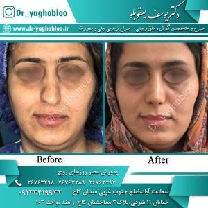 nose surgery (321)