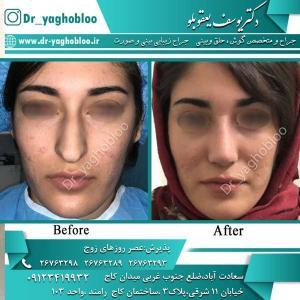 nose surgery (328)
