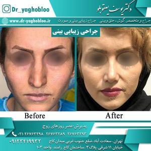 nose surgery (33)